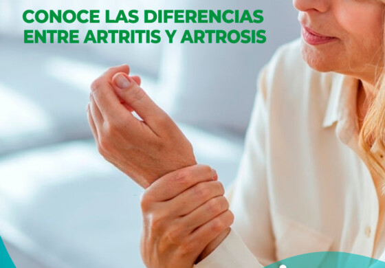 Conoce las diferencias entre artritis y artrosis